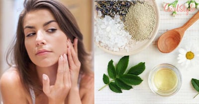 Dealing With Skincare Troubles?! Here Are A Few Herbal Remedies